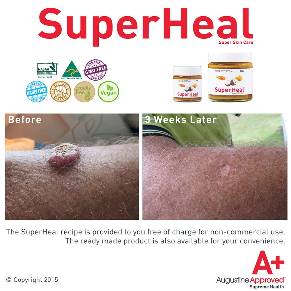 superheal-before-after.jpg